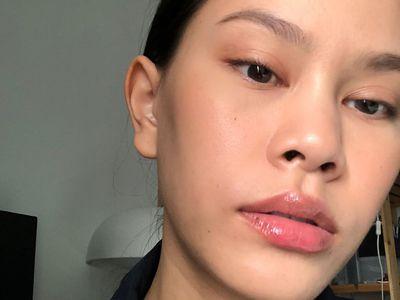 blackheads nose treatment