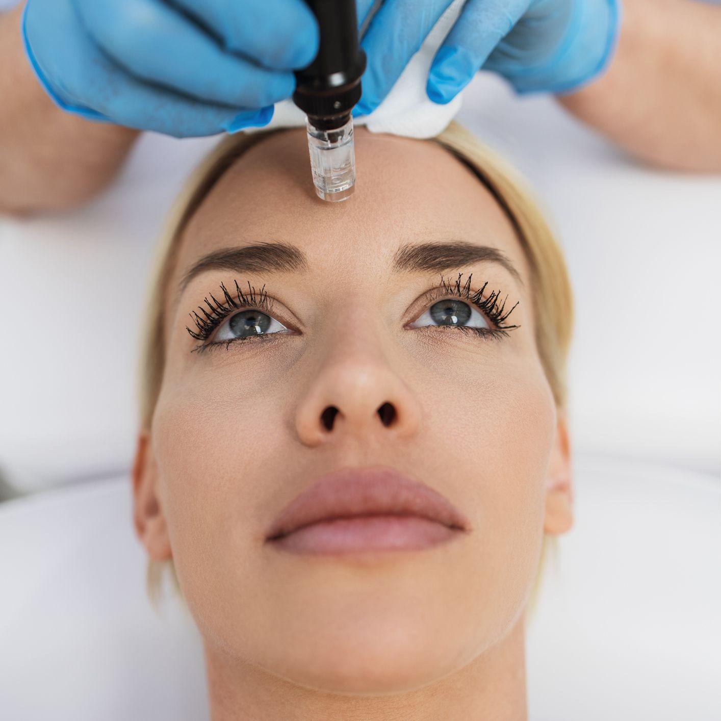 Woman receiving microneedling treatment