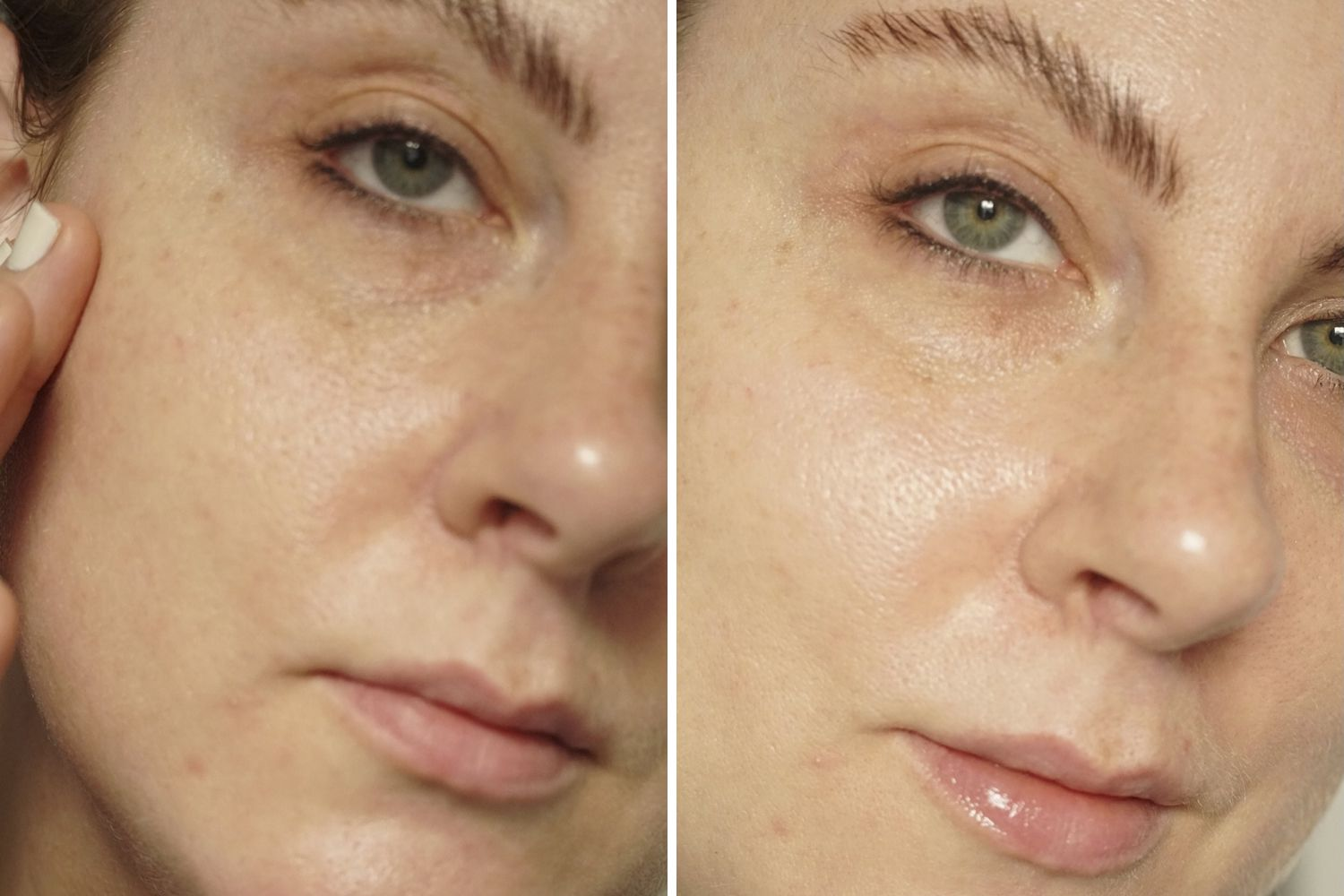 InstaNatural vC Serum Before/After