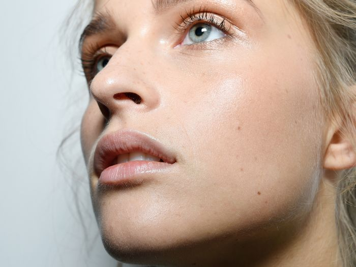 Ask the Expert: How Can I Fix Skin Redness and Rosacea?
