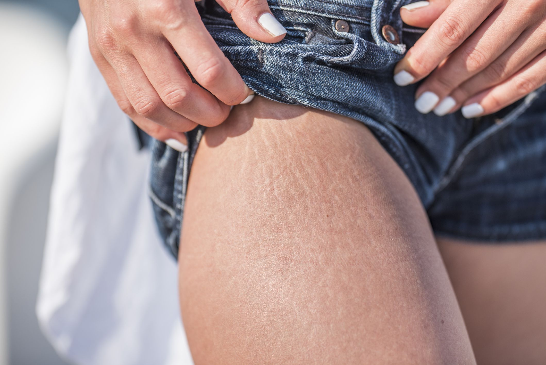 The 10 Best Stretch Mark Creams Of 2020