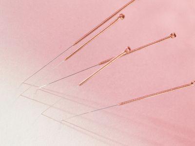 Acupuncture needles