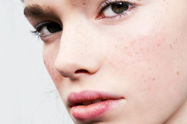 Latin Skin Is More Susceptible to Hyperpigmentation—Here's