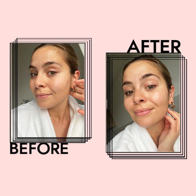 Fresh Rose Face Mask Results on Emily Algar
