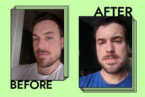Dr. Barbara Sturm Face Cream for Men Results on Adam Hurly