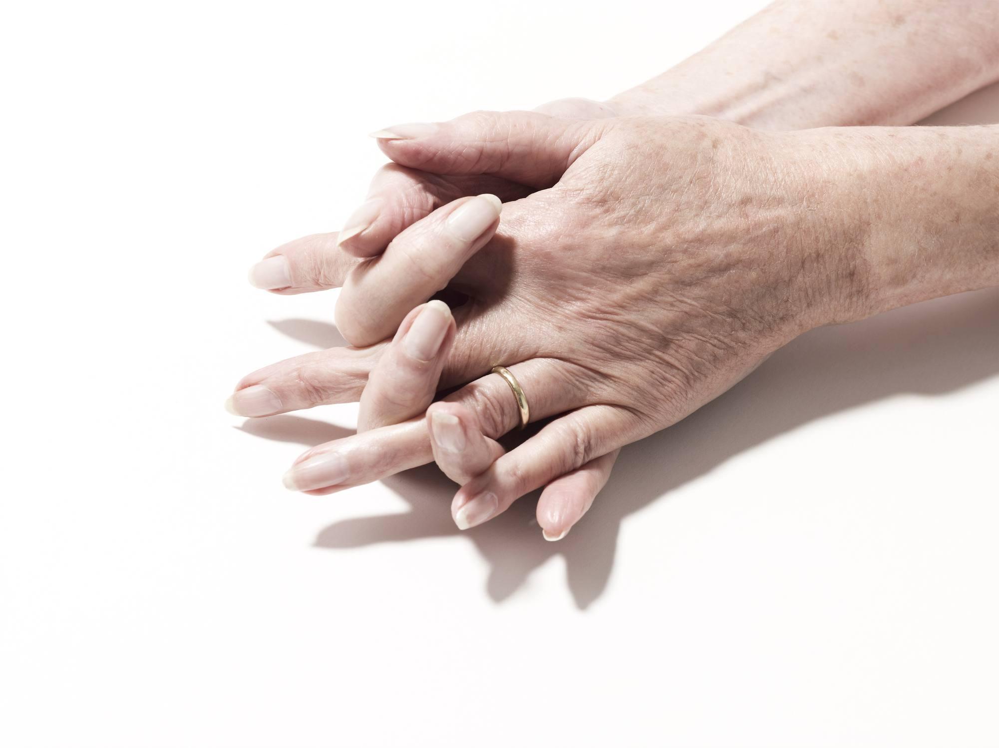 White Spots On Skin Idiopathic Guttate Hypomelanosis