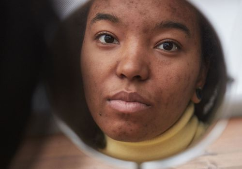 person with acne hyperpigmentation