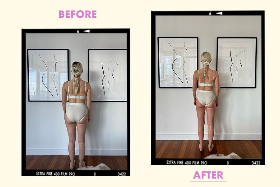 before/after lymphatic Drainage