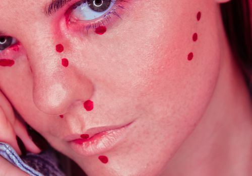 woman with red dots on face