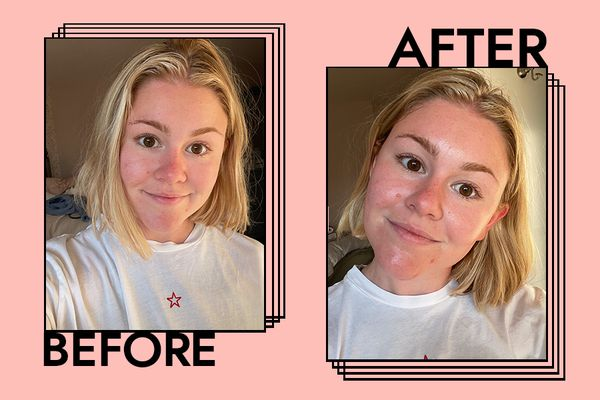 Supergoop Glow Stick SPF 50 Results on Melony Forcier