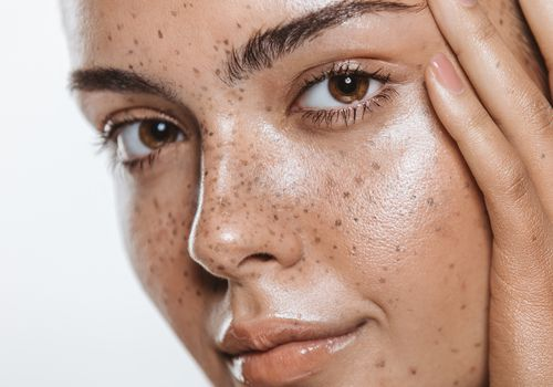 woman with nice skin and freckles
