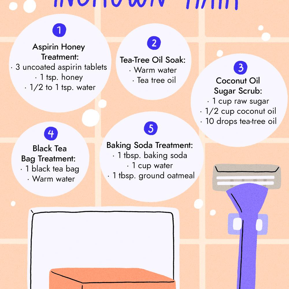 how to treat ingrown hair