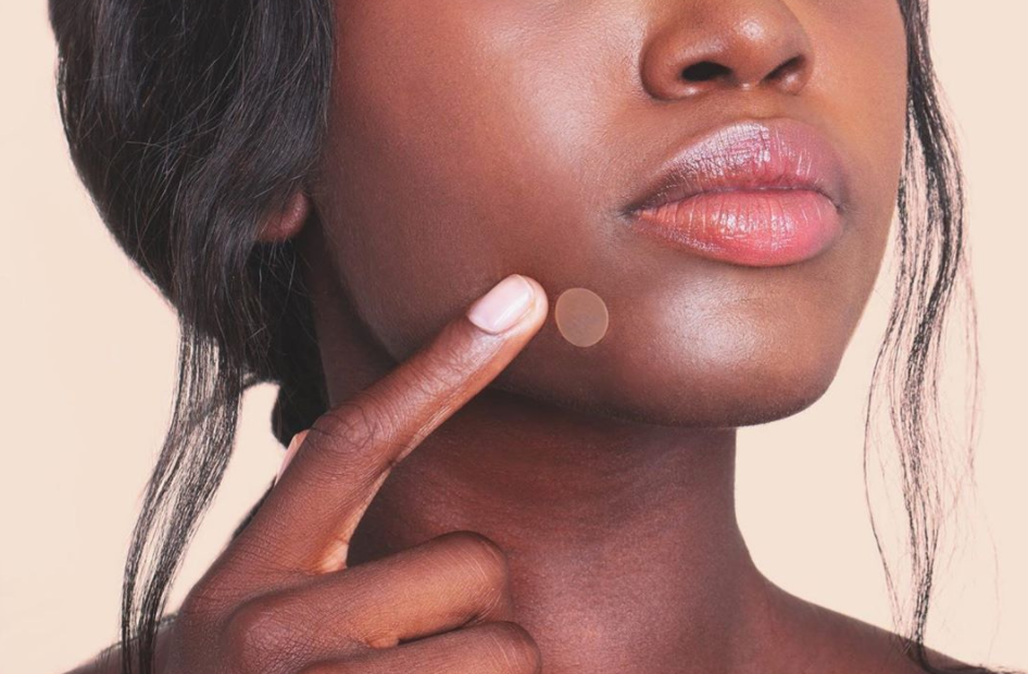 Cold Sore Vs Pimple How To Tell The Difference