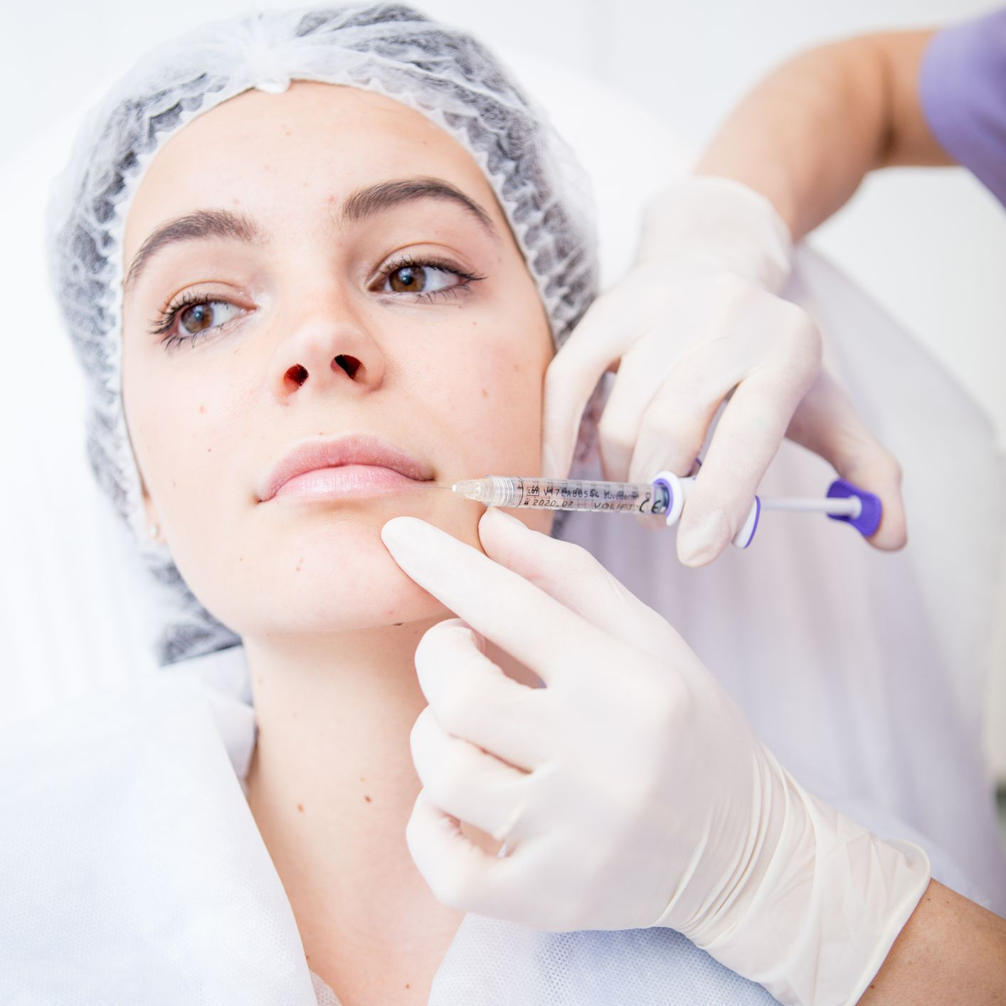 young woman getting fillers near mouth