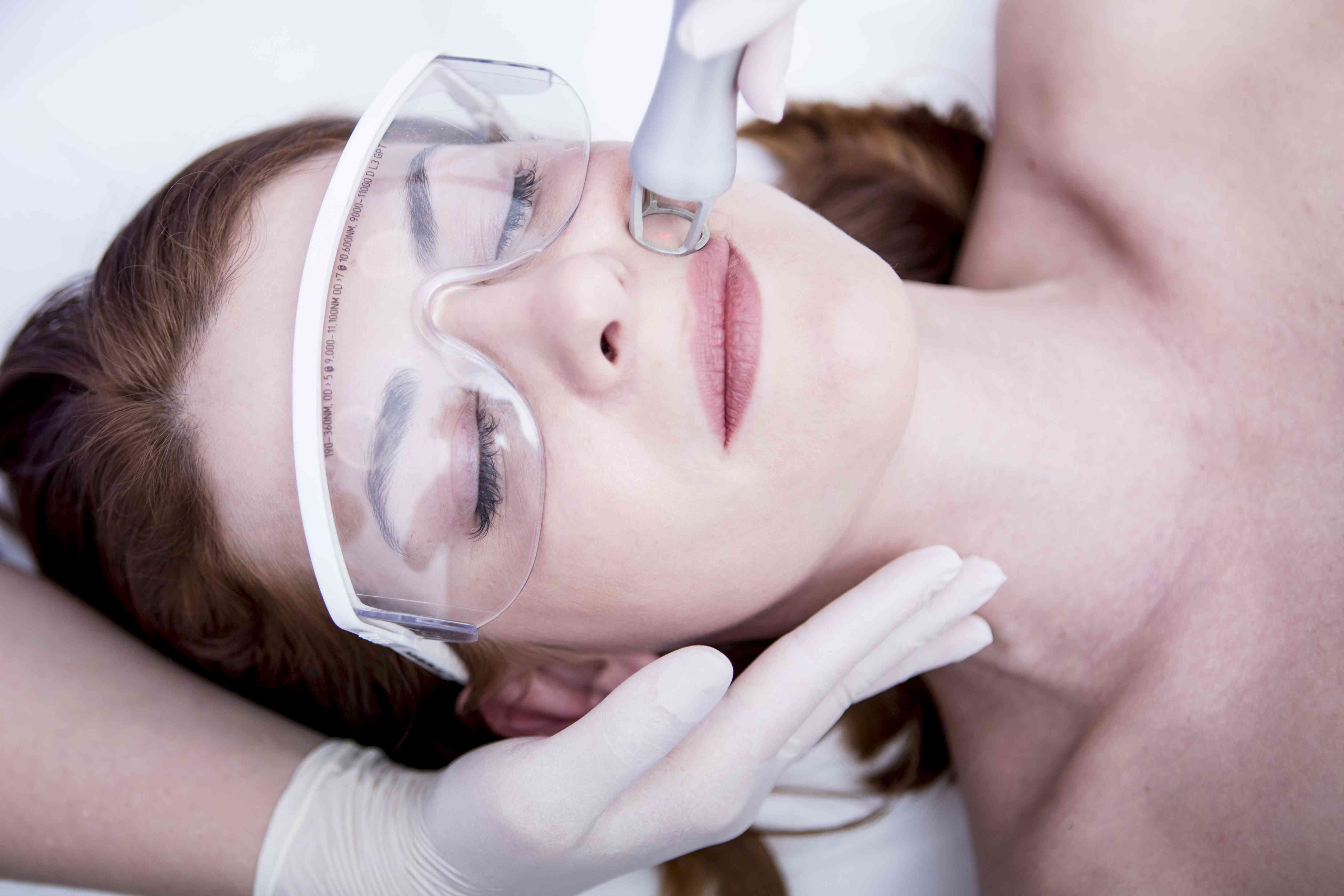 Laser Resurfacing - Treating Fine Lines Above Lips