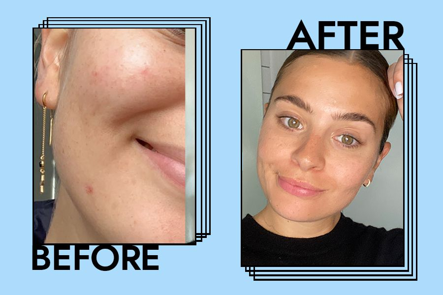 iS Clinical Active Serum Review