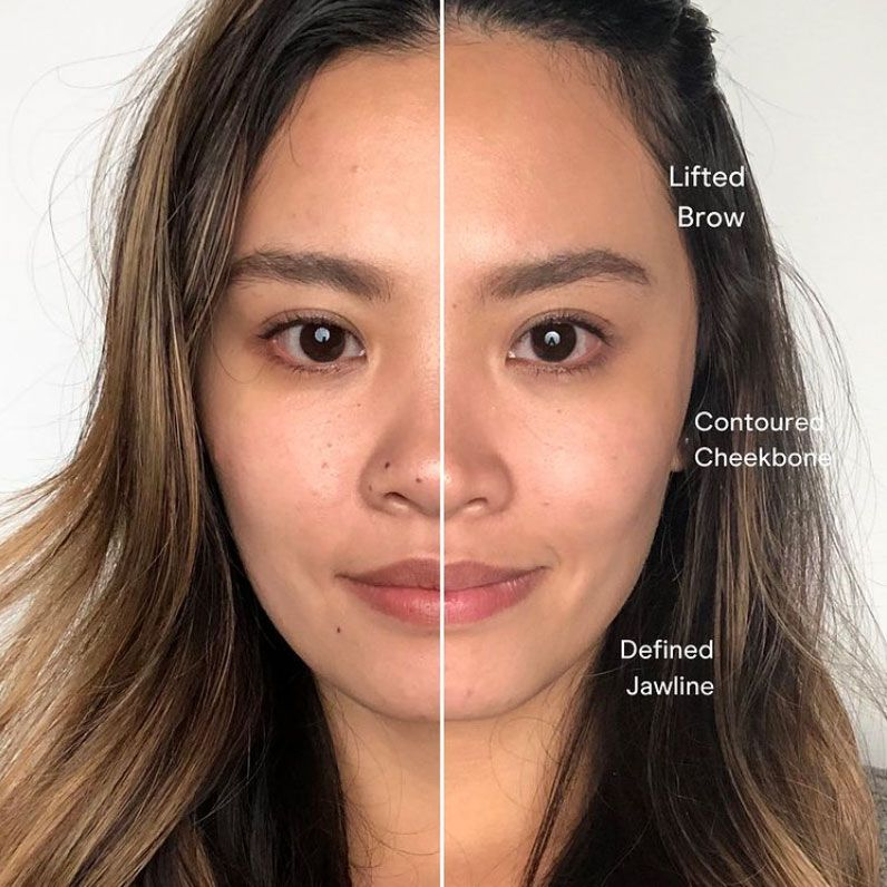 NuFace user's before and after photo