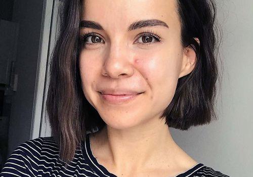 ingrid nilsen acne