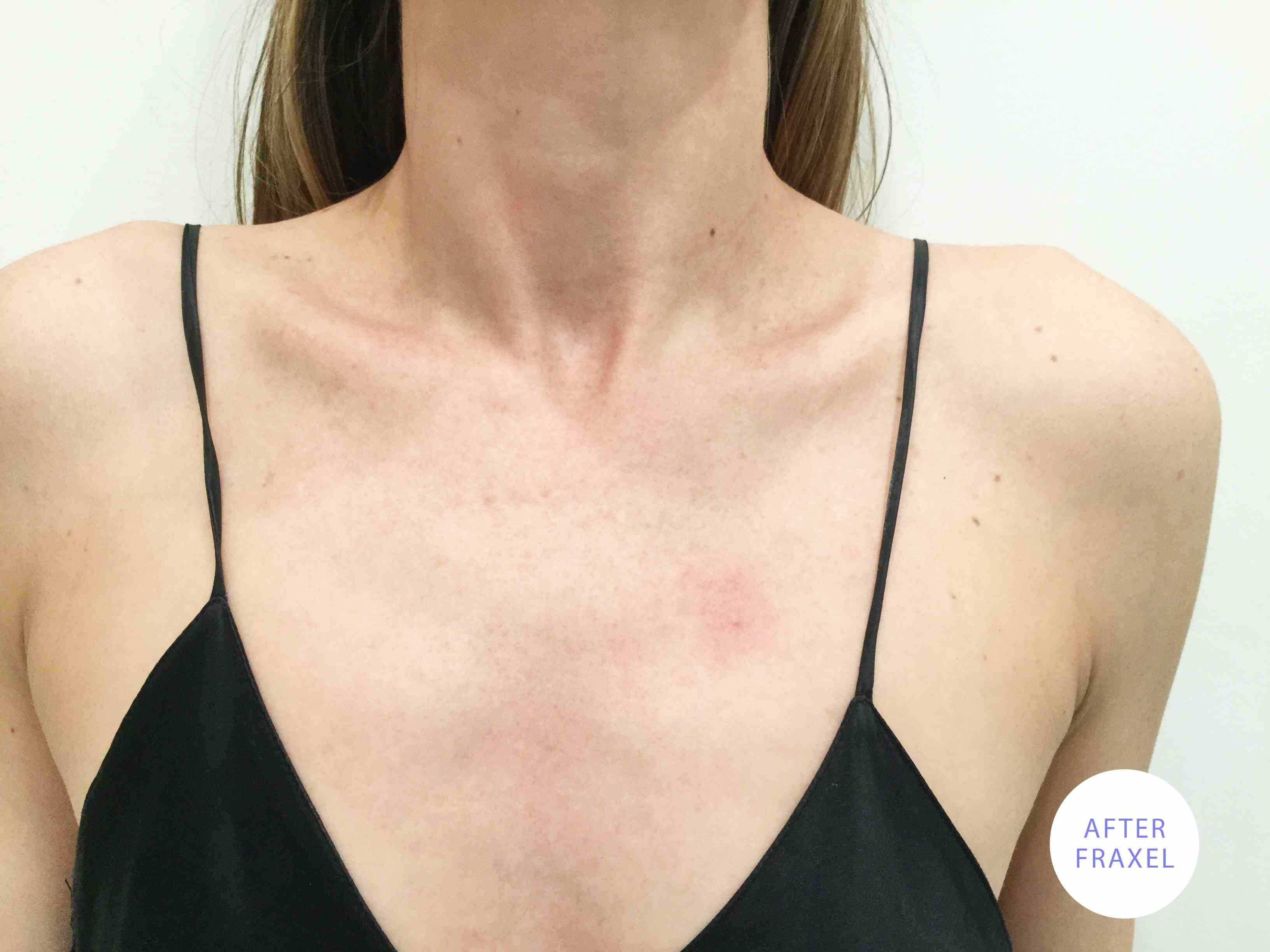 After a Fraxel treatment on the chest