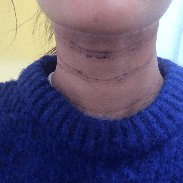 I Tried Neck Filler To Diminish My Neck Wrinkles