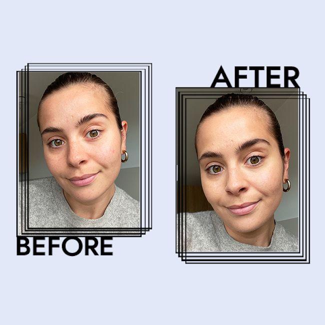 Laneige Water Bank Moisture Cream Results on Emily Algar