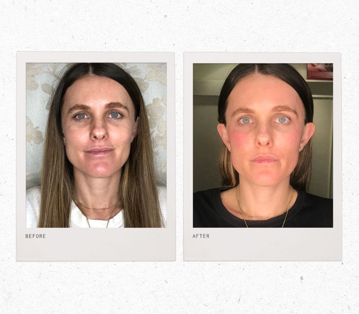 forma laser—before and after