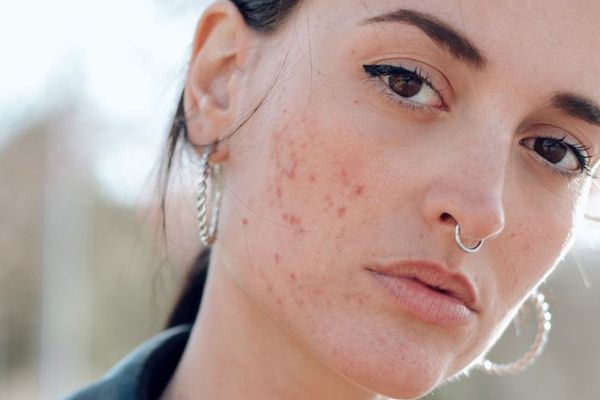 This Woman's Acne Completely Cleared Up Because of Retinol