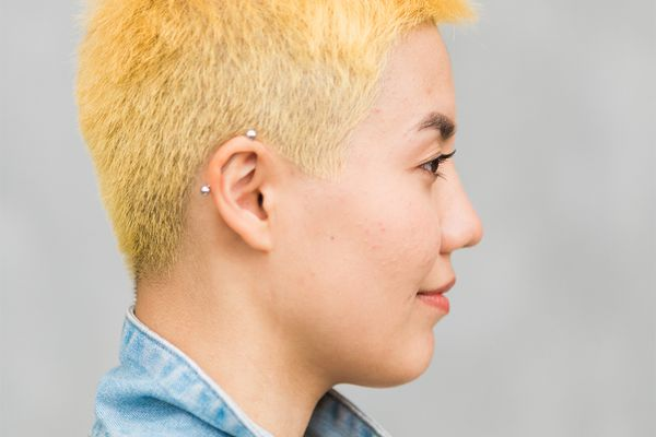 profile of person with acne