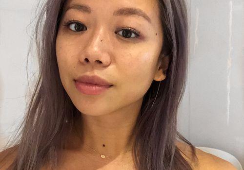 kate somerville aquagold facial