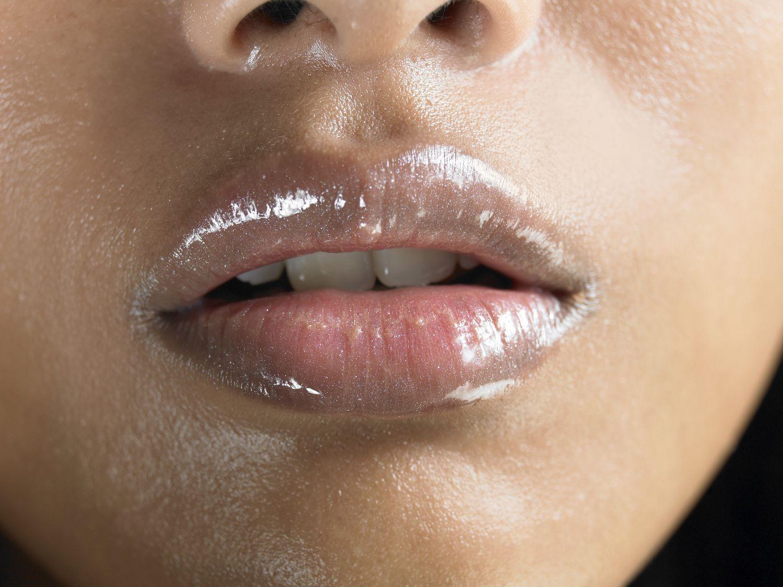 On lips bumps little ▷ Bumps