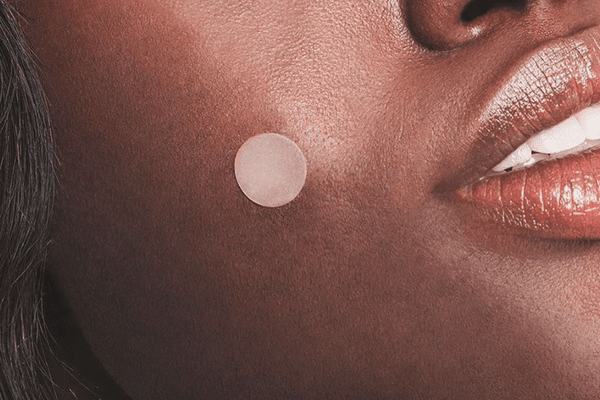Pimples On Lips Dermatologist Shares Causes And Treatment