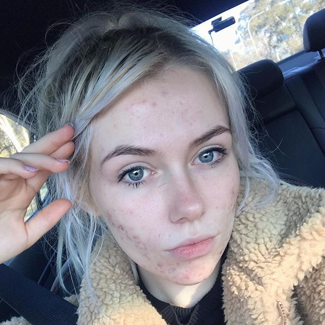 12 Beautiful Pictures Of Acne Scars