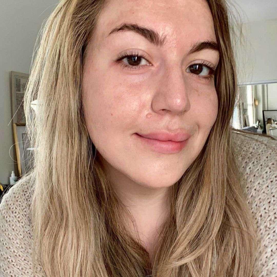 Amanda Ross - Before Aurelia Eye Serum