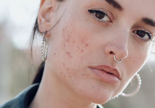 woman with acne and silver hoop earrings looking into camera