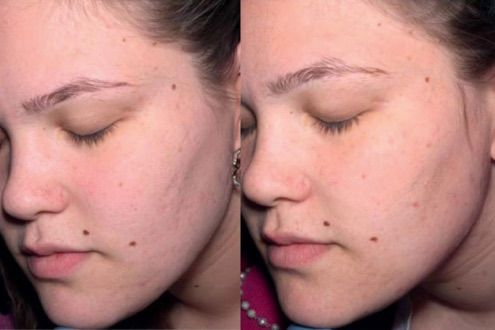Micro Needling For Acne Scars How To Do It Right