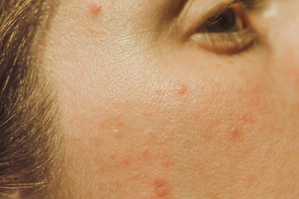 close up of acne
