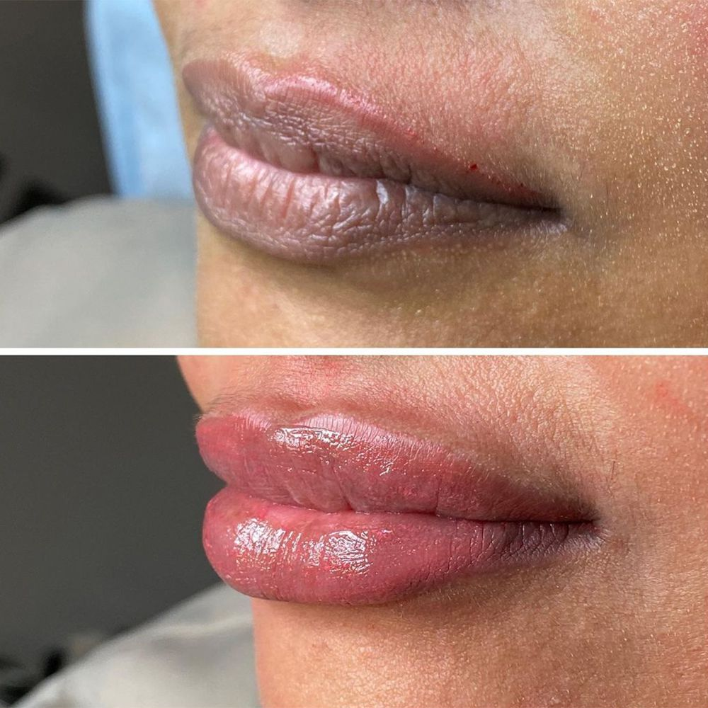before and after lip blushing