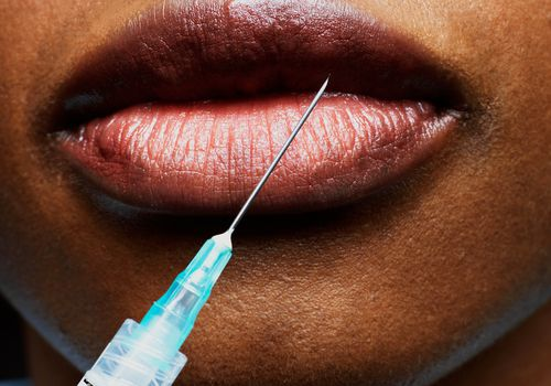 closeup of botox syringe on lips