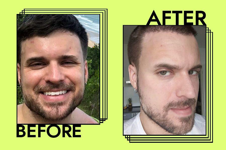 Dr. Dennis Gross Acne Eliminating Gel Results on Adam Hurly