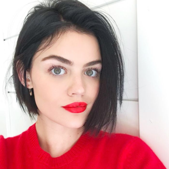 Lucy Hale Cystic Acne