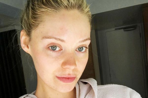 5 Commandments of Chemical Peel's for Sensitive, Acne-Prone Skin
