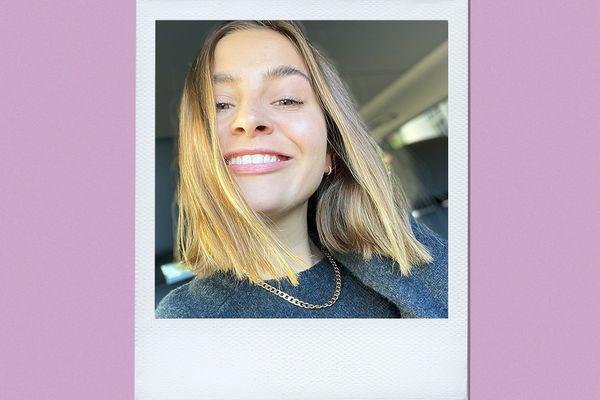 Hismile PAP+ Teeth Whitening Kit Results on Emily Algar