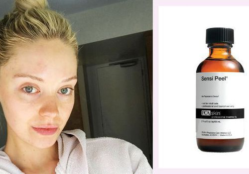 woman with clear skin side by side with pca skin sensi peel product