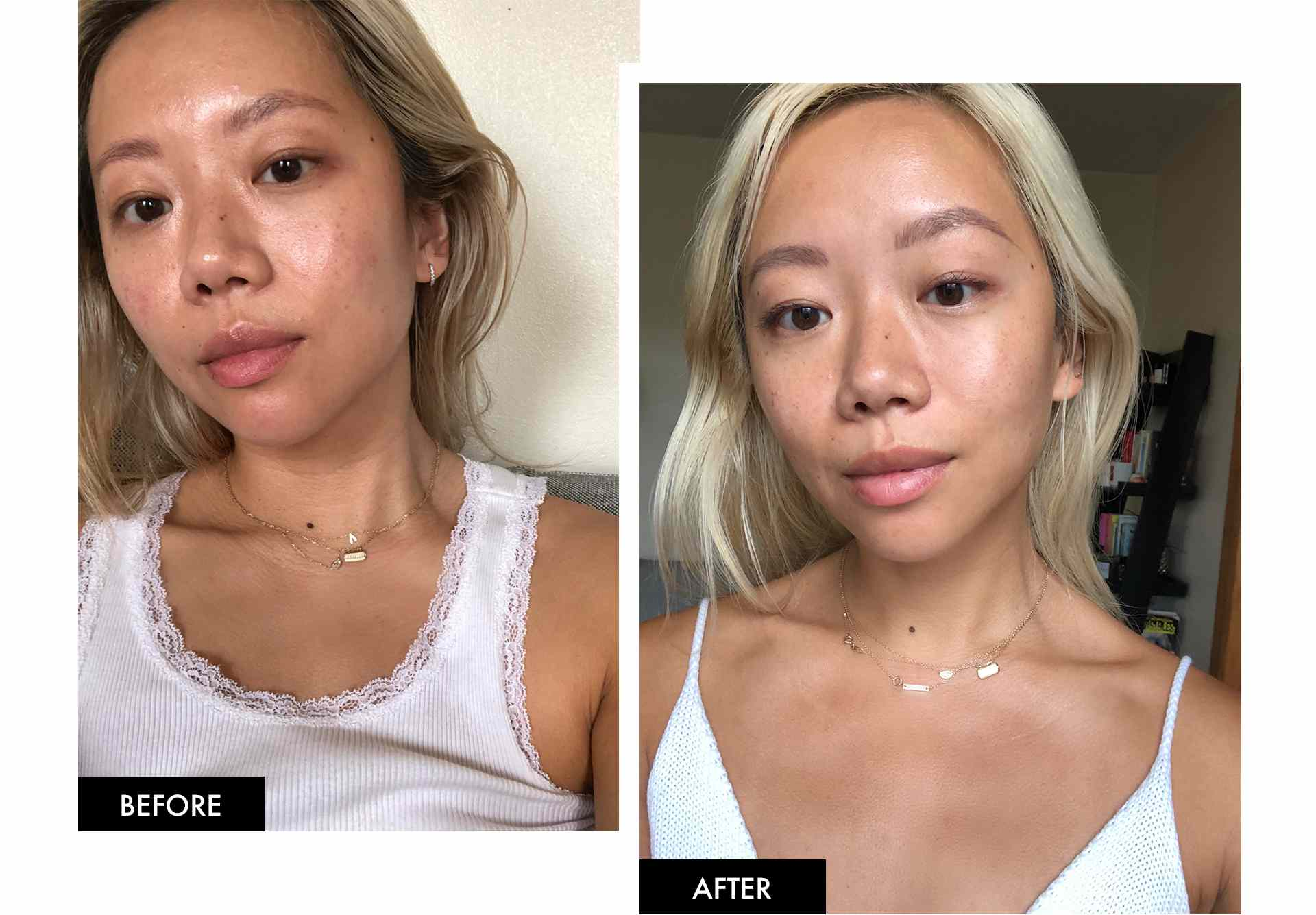 Faith Before and After StriVectin Super-C Serum