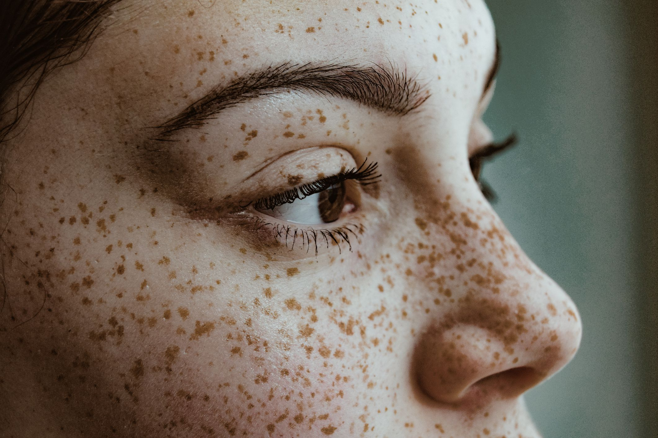 How To Prevent And Treat Pimples After A Wax