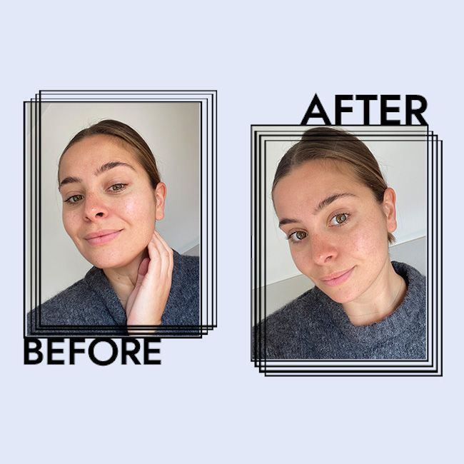 iS Clinical Cleansing Complex Results on Emily Algar