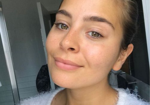 Emily Algar goes makeup free
