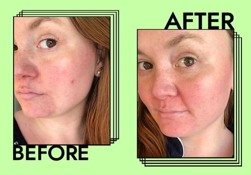 sunda riley acne oil before and after photo