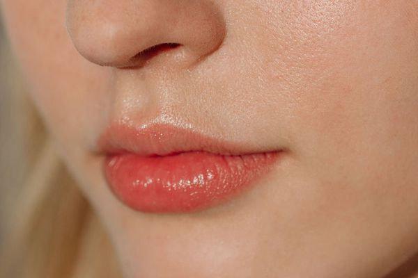 How to Tell If You Should Get Fillers