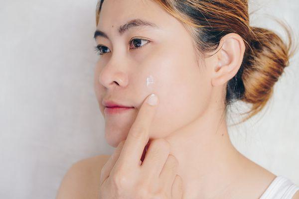 woman applying acne cream